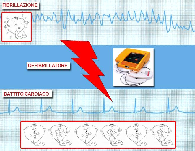 fibrillazione, defibrillatore e battito cardiaco